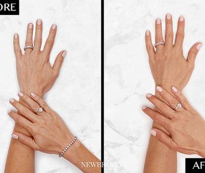 A New Way to Get More Youthful-Looking Hands