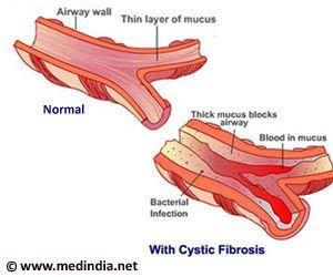 Gene Therapy May Help Treat Cystic Fibrosis Lung Disease