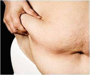 Scarring Molecule LOX Linked to Unhealthy Fat, BMI and Fat Tissue Function