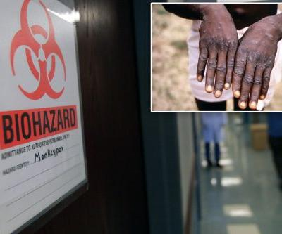 Texas man returns from Nigeria with case of monkeypox