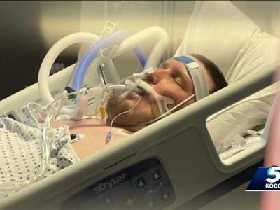 Man who didn't believe in vaccine fighting for his life with COVID-19-induced pneumonia